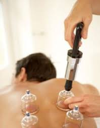 Suction Cupping